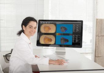 Wideodermoskopia – nowa usługa w Poliklinice evi-MED